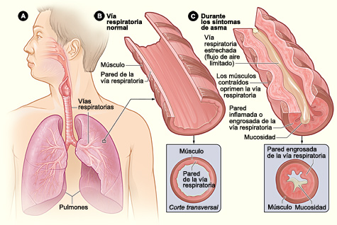 esteroides inhalados nombres